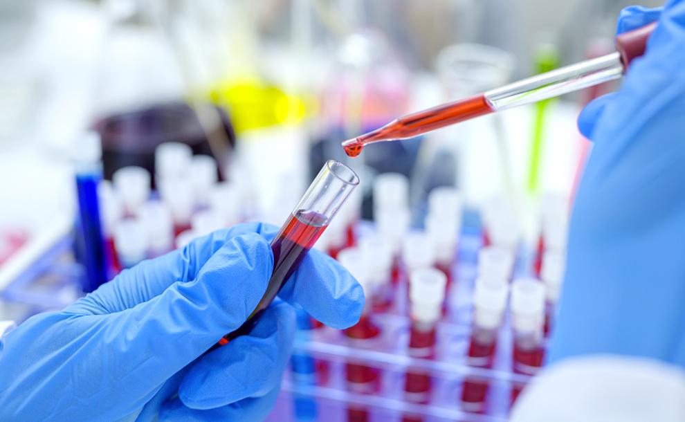 Regione Marche, si sperimenta il plasma a scopo terapeutico